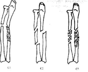 Сложный перелом диафизов обеих костей предплечья - С