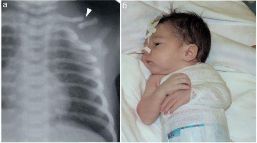 Перелом ключицы у ребенка при родах: почему бывает | Травматология