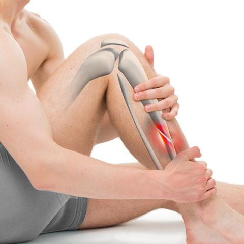 Снижение боли при переломе костей голени – одна из первоочередных задач врача.