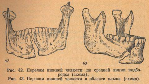 Среди переломов лицевой части черепа чаще всего встречаются именно повреждения нижней челюсти.