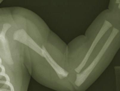 Средний плечевой отдел