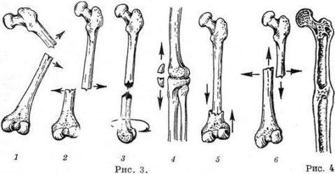 Так смещаются отломки и образуется костная мозоль (справа)