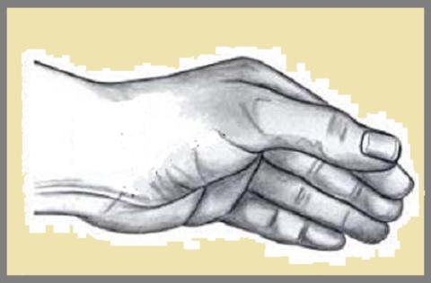 Типичное положение кисти после травмы при переломовывихе Беннетта