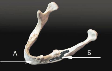 Титановые пластины прочно скрепляют кости нижней челюсти.