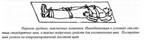 Транспортировка при переломе груди и спины проводится на жестком щите