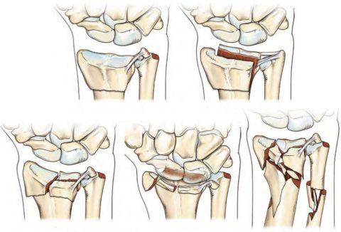 Травма края костной ткани со смещением лучевой кости