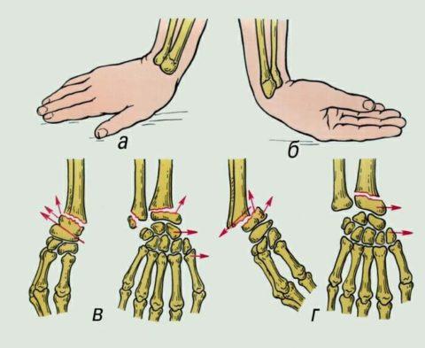Травма лучевой кости Колеса (а, в) и Смита (б, г)