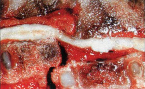 Травма с переломо-вывихом позвонков и с геморрагией серого вещества