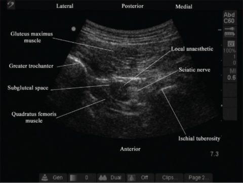 Ультразвуковая «карта» анестезиолога при выборочной блокаде седалищного нерва.