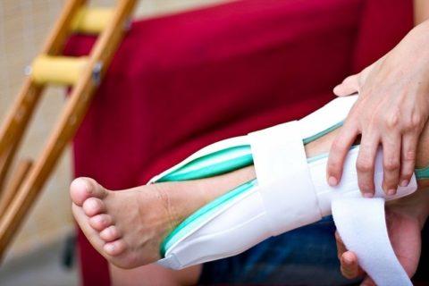 Установка шины - первая помощь при переломах голеностопа без смещения