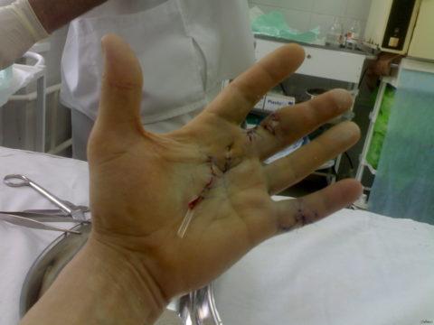 Вид кисти после операции на пальцах и восстановлении сухожилий и нервов