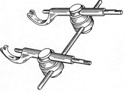 Внеротовые статические аппараты используют в тех случаях, когда во рту размещать фиксатор по какой-то причине нежелательно.