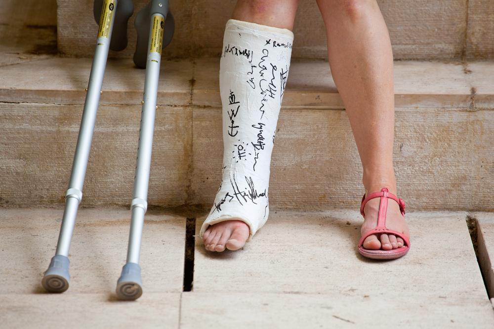 Частота консервативного лечения превалирует над оперативным при переломе лодыжки.