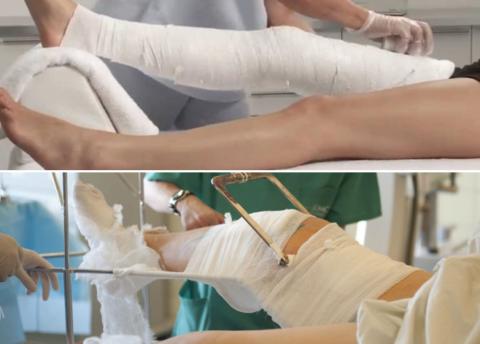 Выбор лечения зависит от разновидности и тяжести закрытого перелома