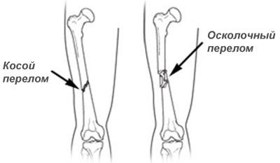 Закрытый перелом бедра со смещением или без является опасной травмой.