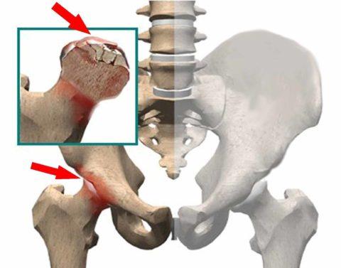 Асептический некроз развивается вследствие отмирания костных тканей из-за нарушения их трофики и кровоснабжения.