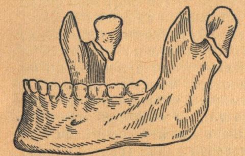 Более редкая травма – это перелом суставного отростка нижней челюсти.