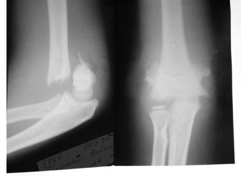 Чрезмыщелковый перелом относится к наиболее тяжелым травмам верхней конечности.