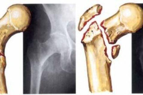 Чтобы оценить степень серьезности полученной травмы необходимо сделать рентгенологические снимки.
