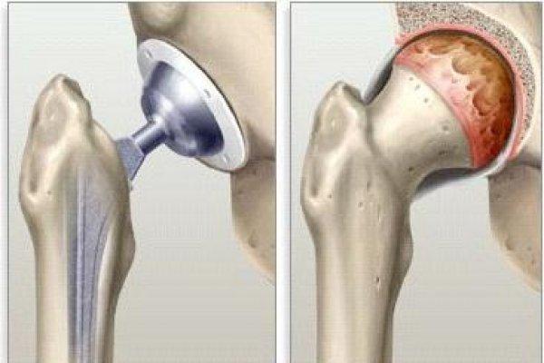 как протезируется тазобедренный сустав