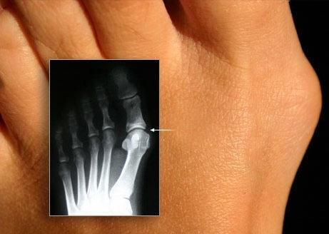 Деформация фаланги плюсны и 2-й фаланги большого пальца