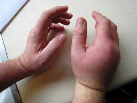 Длительная опухоль кисти после перелома предплечья