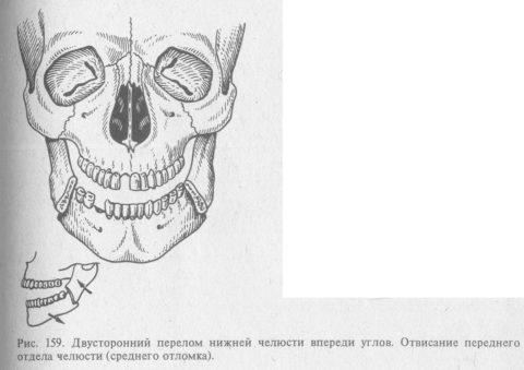 Если костные ткани челюсти повреждаются в 2-ух симметричных местах, то это называется двусторонним переломом.