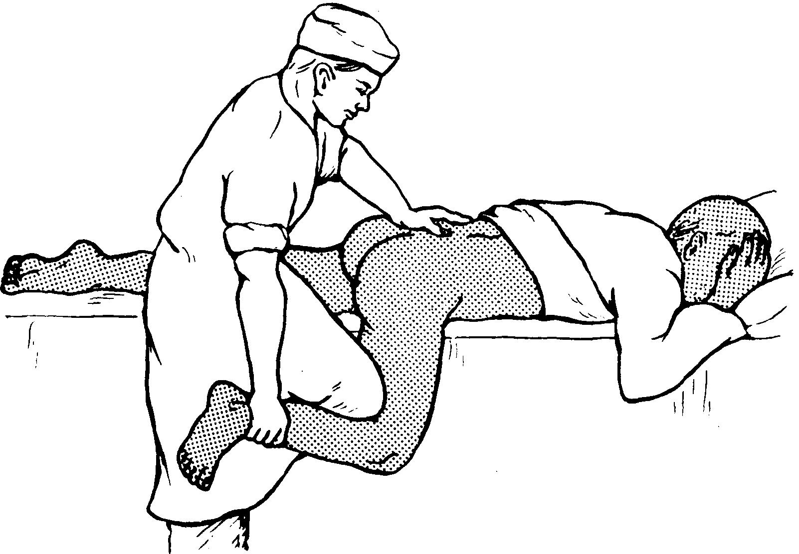 секс при переломе шейки бедра-ыб2