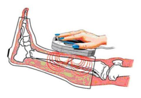 Физиопроцедуры положительно воздействуют на процесс срастания переломов