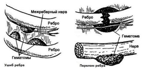 Гематомы при переломе и ушибе ребер