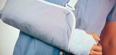 Гипсовая повязка с иммобилизацией травмированной руки