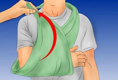 Иммобилизация предплечья с помощью косынки
