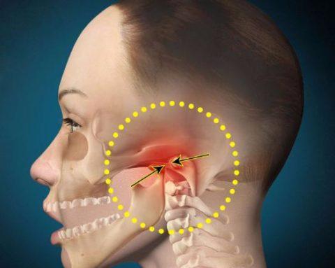 Иногда происходит перелом именно в височно-челюстном сочленении.
