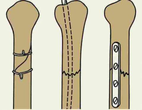 Иногда производят скрепление отломков костей у малыша специальными фиксаторами – спицами, болтами, пластинами.