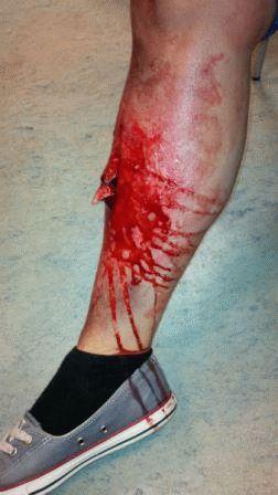 Из раны виден отломок кости