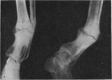Из-за неправильного срастания костных тканей может появиться ложный сустав.