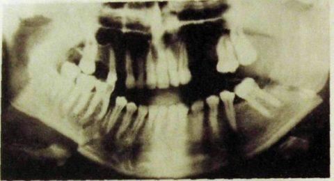 Костные ткани могут травмироваться одновременно на верхней и нижней челюсти.