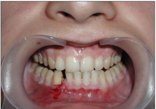 Перелома челюсти в домашних условиях