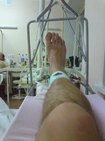 Лечение перелома ноги (голени) с помощью скелетного вытяжения