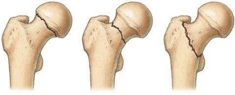 Локализация переломов бедренной кости