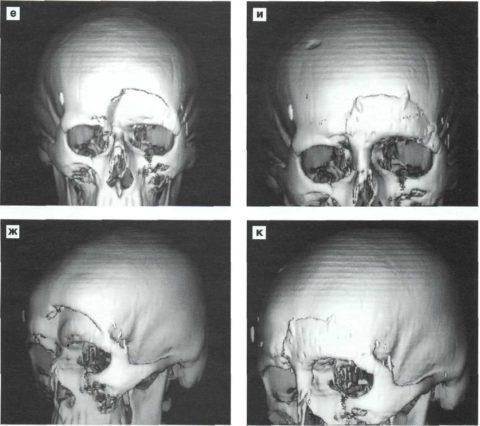 МРТ-диагностика поможет увидеть специалистам степень и количество повреждений.