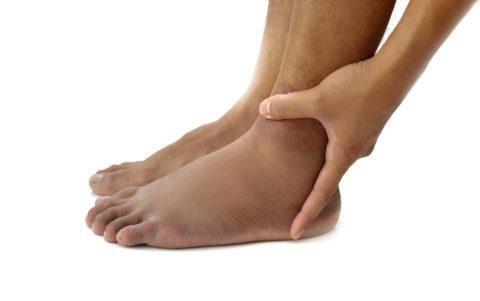 Одним из симптомов, сопровождающих перелом, является отек