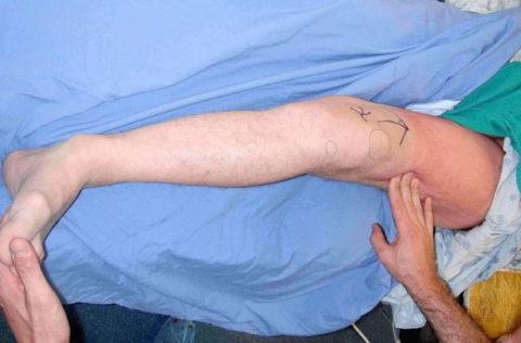 Отек после перелома шейки бедра возникает в большинстве случаев.