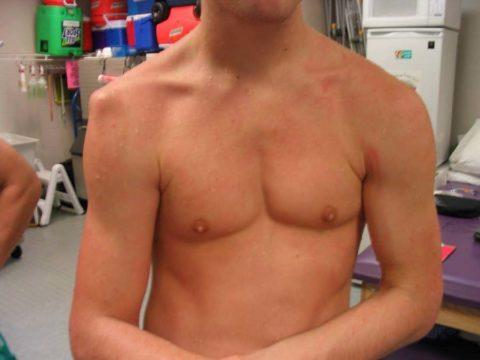 Перелом бугорка плечевой кости не всегда можно определить по симптомам