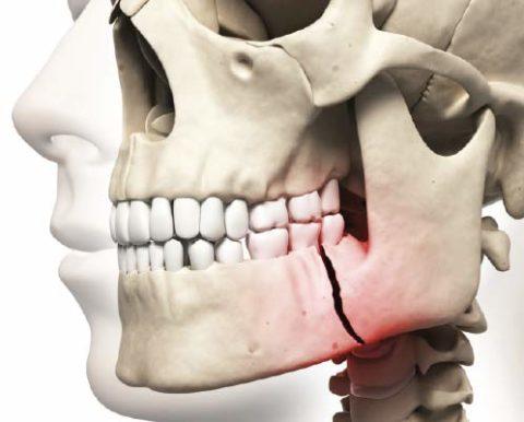 Перелом челюсти без смещения наименее опасны, т. к. отломки кости не меняют своего физиологического положения.