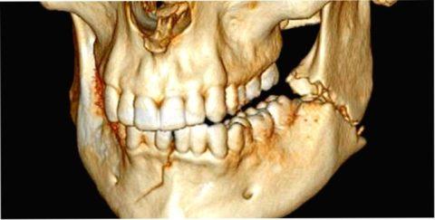 Перелом челюсти может произойти в трех (и более) местах.