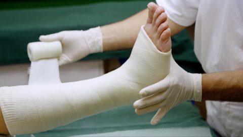Перелом может произойти в любой части ноги