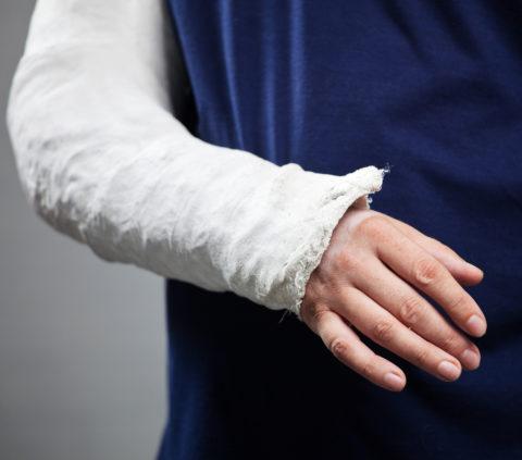 Перелом руки диагностируется клинически и рентгенологически