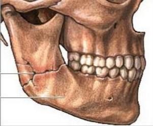 Перелом ветви челюсти может стать следствием остеомиелита.