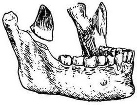Перелом венечного отростка челюсти чаще возникает вследствие заболеваний.